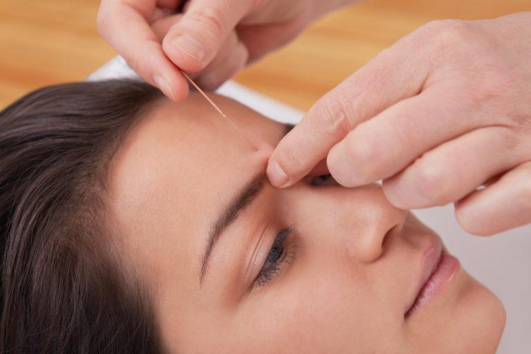 Akupunktur Seefeld